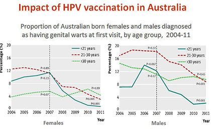Impact of HPV vaccination in Australia.