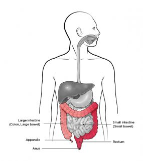 Image shows the human digestive system with areas affected by Ulcerative Colitis highlighted