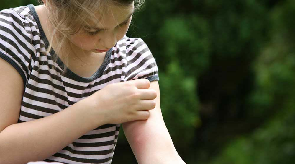 Girl with mosquito bite on her arm