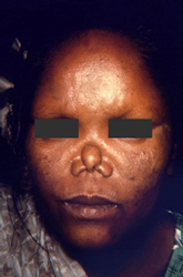 female patient exhibited some of the complications associated with multibacillary leprosy