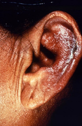 patient presented to a clinical setting with an inflammatory lesion on the outer left ear