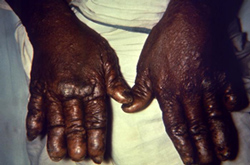 dorsal surface of the hands of a patient with a case of nodular multibacillary leprosy