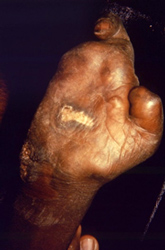 ventral surface of the right hand of a patient with a case of multibacillary leprosy