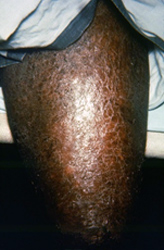 patient who had presented to a clinical setting with a case of multibacillary leprosy