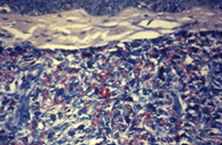 acid-fast-stained photomicrograph of a tissue sample extracted from a patient