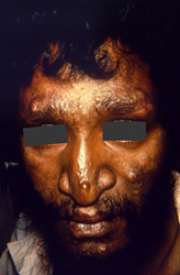 The face of this male patient exhibited some of the pathologic characteristic associated with a case of nodular lepromatous, or multibacillary (MB), Hansen's disease. Of note is the presence of cutaneous nodules upon the forehead, nose, cheeks, lips, and chin. The eyebrows are diminished as well.