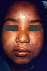 young woman presented with a case of borderline Hansen's disease