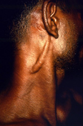 patient presented to a clinical setting with a marked enlargement of the great auricular nerve due to infection