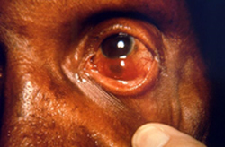 patient presented in a clinical setting with a case of multibacillary leprosy
