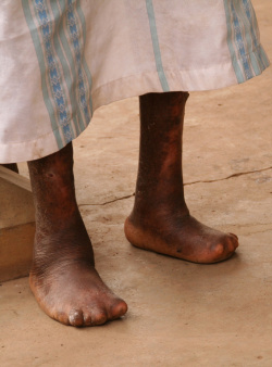 Feet of someone with Hansen's disease