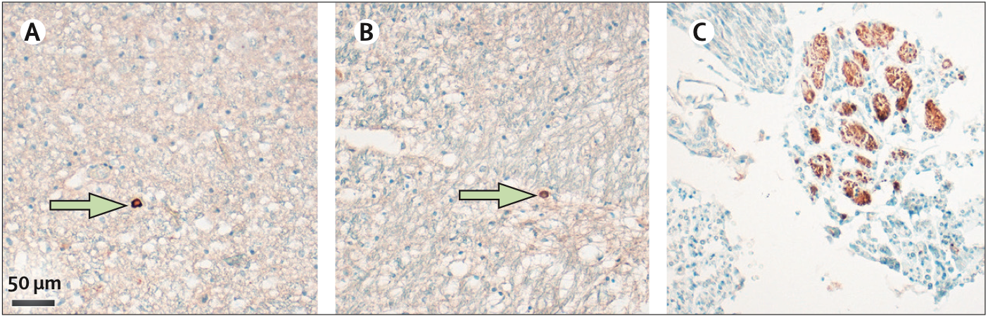 . Viral protein-positive cells (green arrows) in the medulla oblongata detected by anti-nucleocapsid protein antibody (A) or anti-spike protein antibody (B). (C) SARS-CoV-2 nucleoprotein (brown staining) in cranial nerves.
