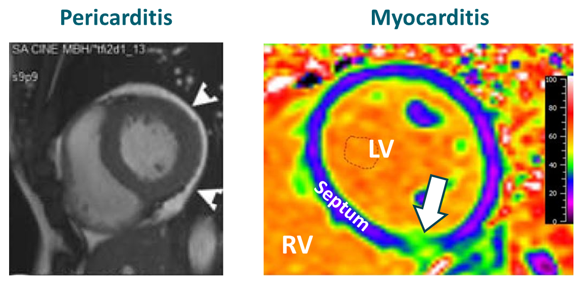 Left panel: White arrows show pericardial effusion in athlete with pericarditis and pericardial effusion. Right panel: Inflammation (white arrow) of the bottom of the wall (septum) dividing the right (RV) and left (LV) cardiac ventricles in athlete with myocarditis.