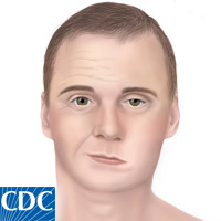 medical illustration of Bell's Palsy