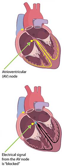 Cutout images of a heart showing third degree block