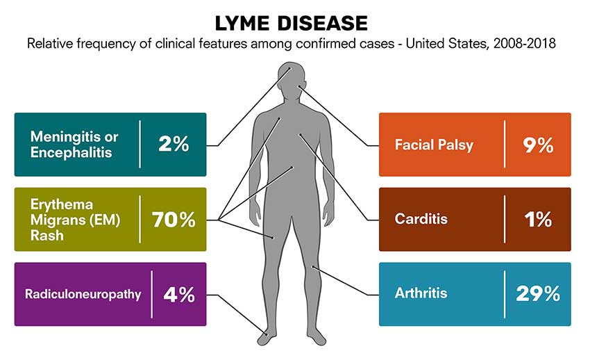 From 2008-2018 of the 235,037 reported confirmed cases of Lyme disease; 70% of patients had an erythema migrans rash; 29% had arthritis symptoms; 9% had facial palsy; 4% had radiculoneuropathy; 2% had meningitis or encephalitis; and 1% had cardiitis.