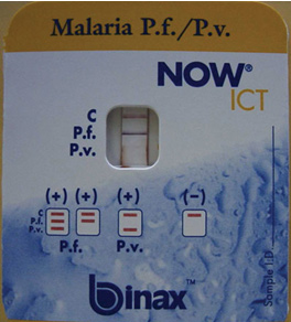 Binax NOW is the only brand of malaria RDT approved for use in the United States. The picture above demonstrates a positive test for Plasmodium falciparum. (Howden BP et al. Chronic falciparum malaria causing massive splenomegaly 9 years after leaving an endemic area. MJA 2005; 185: 186-188. ©Copyright 2005. The Medical Journal of Australia - reproduced with permission.)