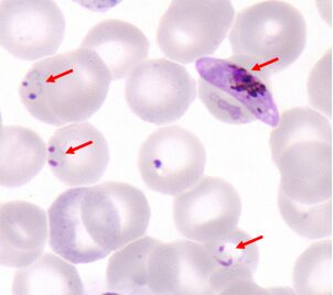 http://www.cdc.gov/malaria/images/microscopy/gam_rings_arrowed.jpg