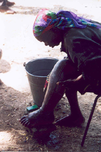A woman in Nigeria washes her left leg and foot, swollen by lymphatic filariasis; frequent washing with soap and water helps prevent bacterial superinfection. Credit: F. Richards, The Carter Center