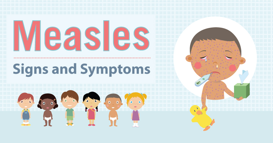 Measles Signs and Symptoms