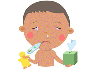 Illustration of child with measles