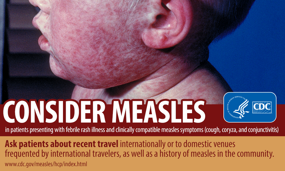 Image result for cdc measles