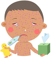 Illustration of baby with measles