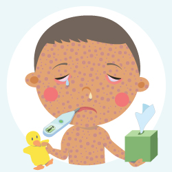 Illustration of child with measles. Child holds a box of tissues and a toy ducky.