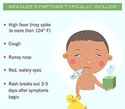 Infographic. Measles symptoms typically include...