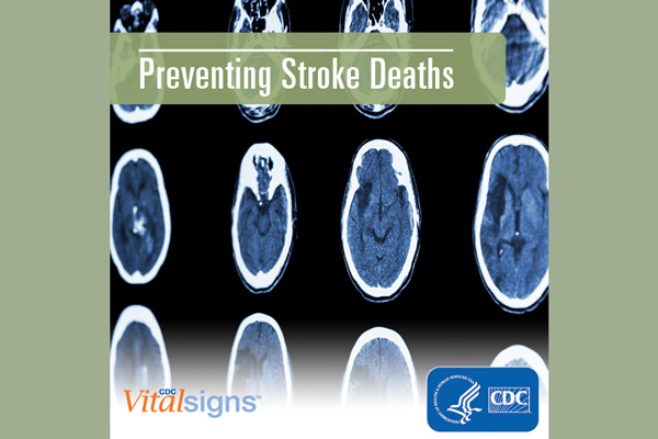 Preventing stroke deaths - background shows brain scan images