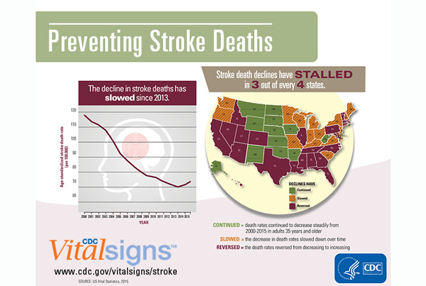 Infographic: The decline in stroke deaths has slowed since 2013. Stroke deaths have stalled in 3 out of every 4 states.