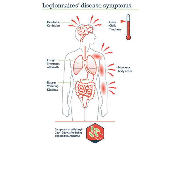 legionnaires' disease | cdc online newsroom | cdc, Human Body