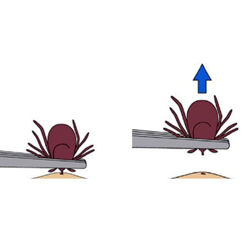 Illustration of a technique for removal of a tick from a person's skin. The tick is grasped with tweezers by its head (very near the skin) and pulled away from the skin in a perpendicular direction.