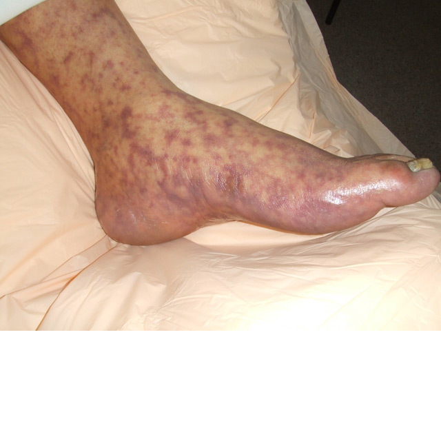 Image of a person's foot and lower leg, with red blotches from Rocky Mountain spotted fever
