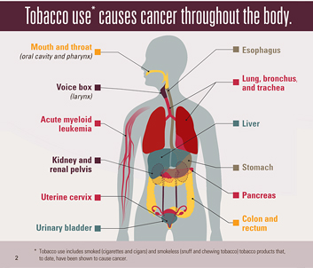 Infographic: Tobacco use* causes cancer throughout the body
