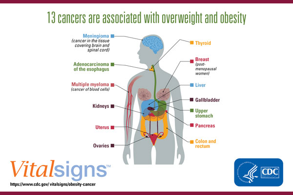 Cancers Associated With Overweight And Obesity Make Up 40 Percent Of Cancers Diagnosed In The United States Cdc Online Newsroom Cdc
