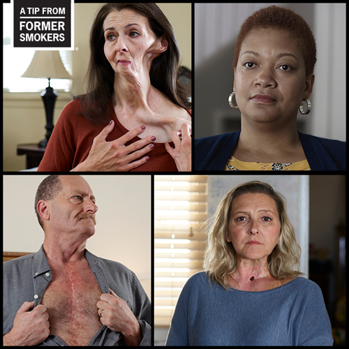 CDC's Tips From Former Smokers: Anti-smoking campaign