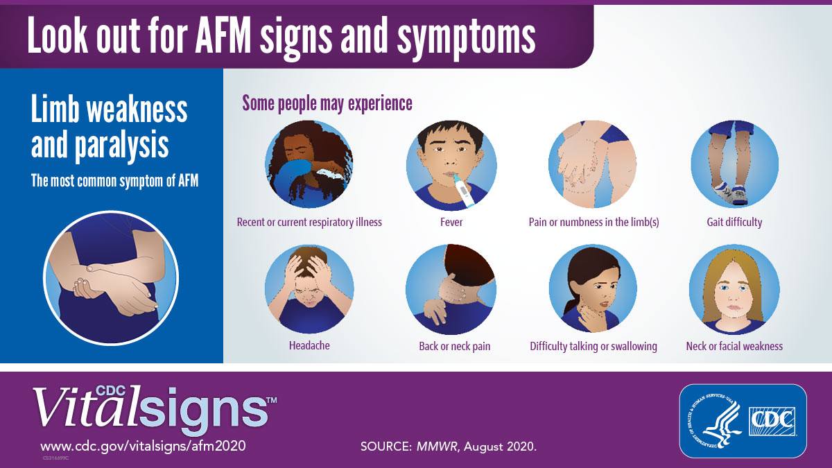 Infographic showing the signs and symptoms of Acute Flaccid Myelitis