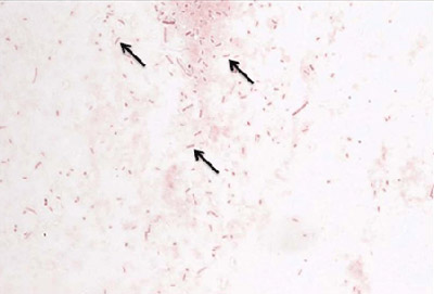 Figure 3 is a picture of a gram stain of H. influenzae.