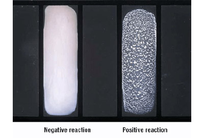 Figure 4 depicts negative and positive latex agglutination reactions.