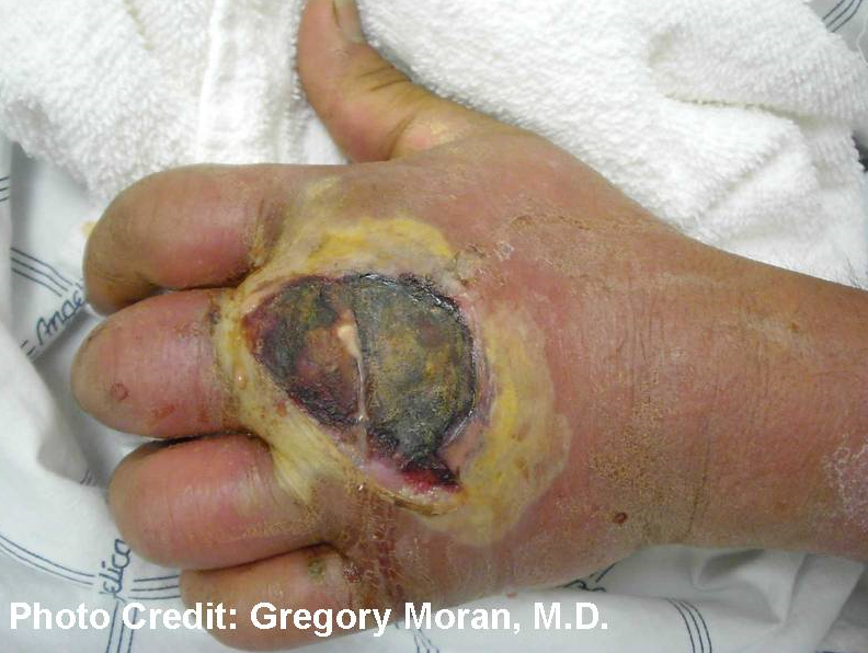 Photograph depicted a cutaneous abscess, caused by MRSA