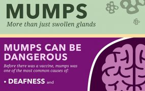 Mumps infographic: more than just swollen glands