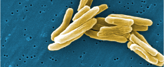 Reports a sharp increase in cases of tuberculosis in the United States, linked to HIV infection and AIDS