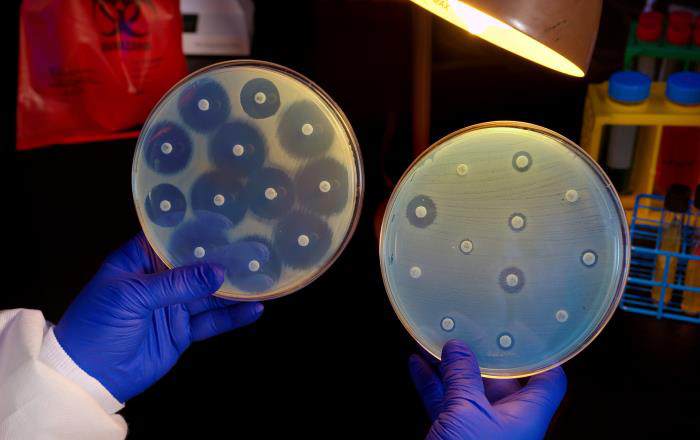 Centers for Disease Control (CDC) microbiologist Kitty Anderson holding up two Petri dish culture plates growing bacteria in the presence of discs containing various antibiotics. The isolate, i.e., bacterial specie, on the left plate is susceptible to the antibiotics on the discs, and is therefore, unable to grow adjacent to the discs. The plate on the right was inoculated with a Carbapenem-Resistant Enterobacteriaceae (CRE) bacterium that proved to be resistant to all of the antibiotics tested, and is therefore, able to grow near the discs.