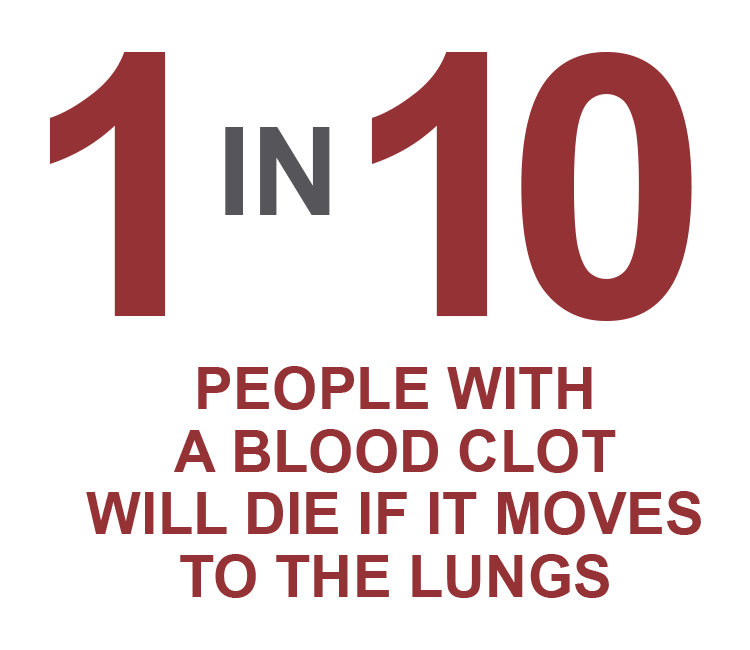 One in ten people with a blood clot will die if it moves to the lungs.