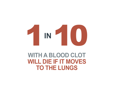 1 in 10 with a blood clot will die if it moves to the lungs