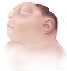 Picture of Anencephaly
