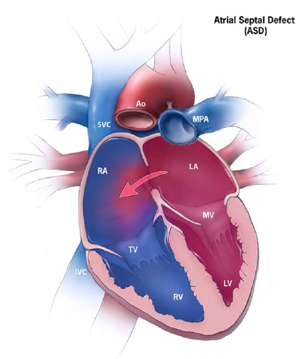 Atrial Septic Defect