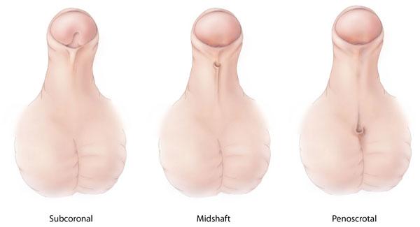 Facts about Hypospadias