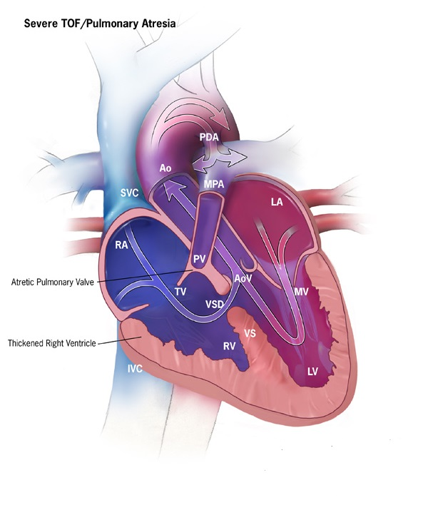 Pulmonary Atresia with Ventricular Septal Defect