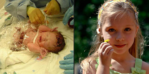 Ashley as an infant in the hospital and at her current age.